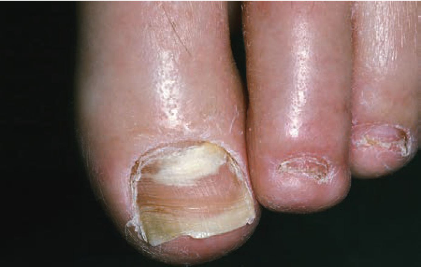 proximal white onychomycosis in the first digit