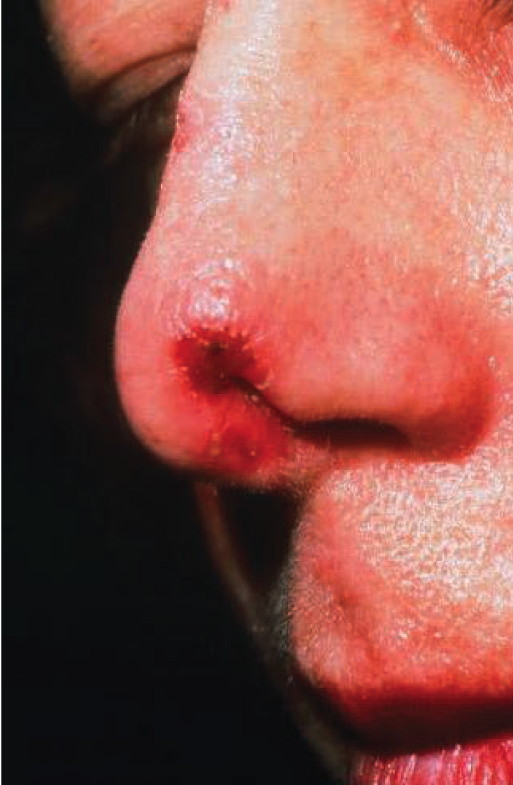 patient has anesthesia and paresthesia of the face near the ulcer.