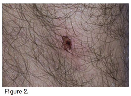 6-mm ulcerated lesion with central necrosis located on the right calf