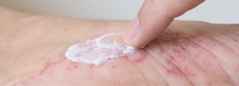topical therapy for eczema