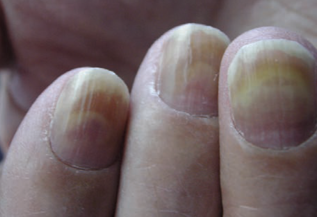 Painful nail changes from paclitaxel