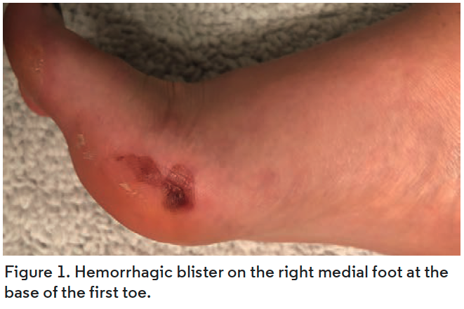 Hemorrhagic blister on the right medial foot at the base of the first toe