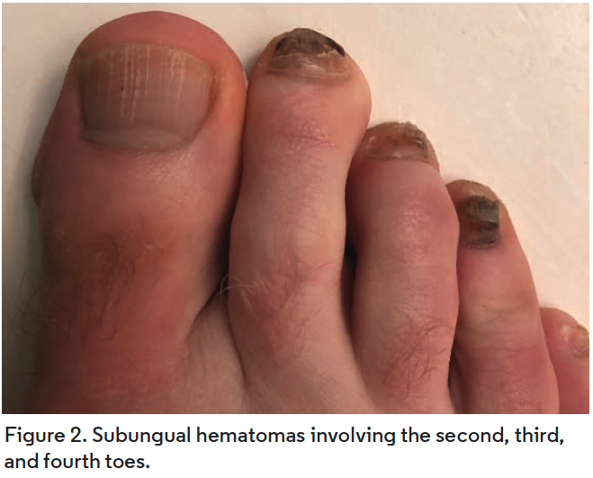 Subungual hematomas involving the second, third, and fourth toes