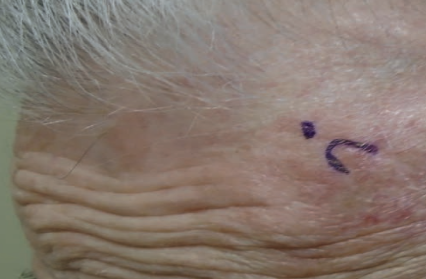 Figure 1. Initial site prior to biopsy; lesion was consistent with BCC.