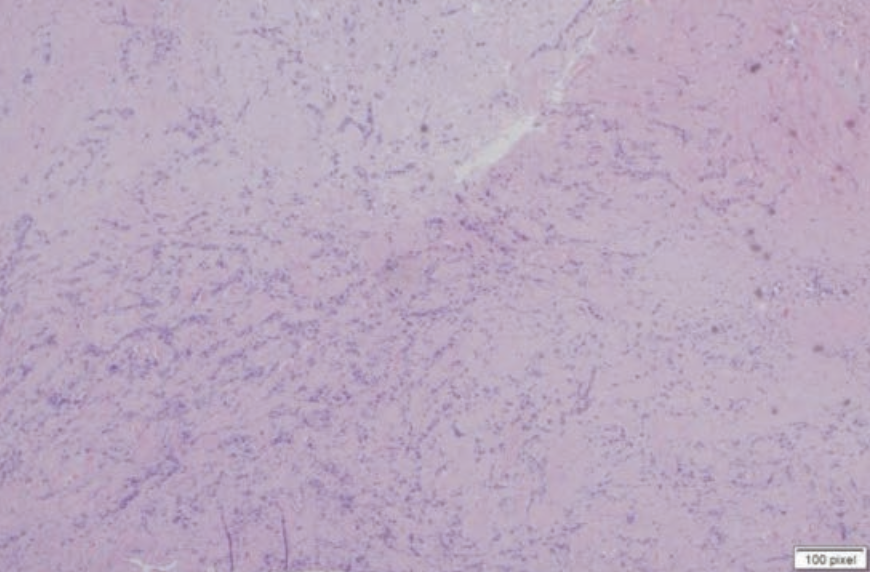 Figure 2. H&E section at 40x showing spindled cells in the dermis.