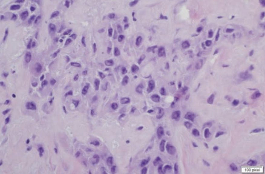 Figure 3. H&E at 400x showing atypia of spindled cells.