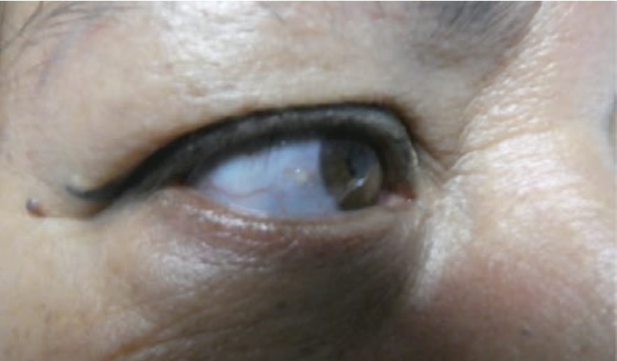 Figure 2. A closer view of the blue sclera in the right eye of the 54-year-old woman with OI.