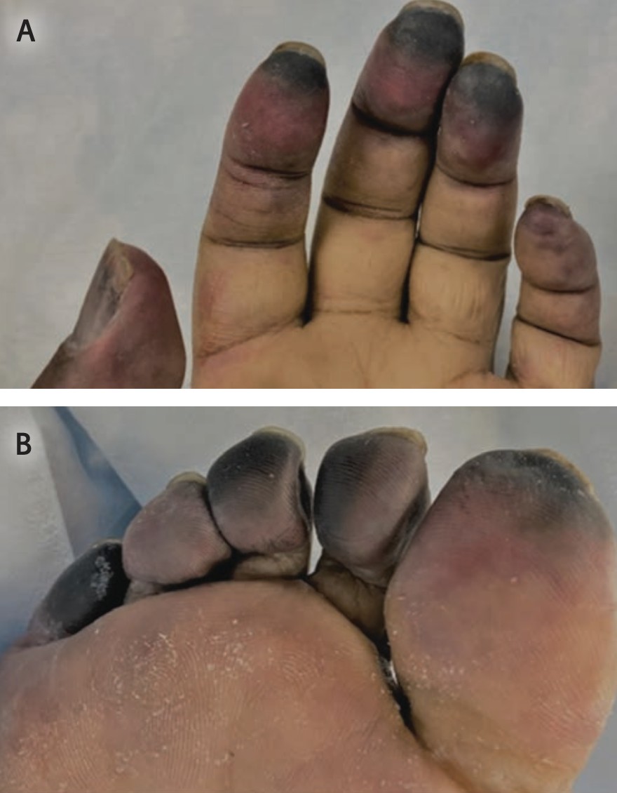 Photomicrographs of the (A) left fingertips and (B) right toes in a patient with severe and critical COVID-19