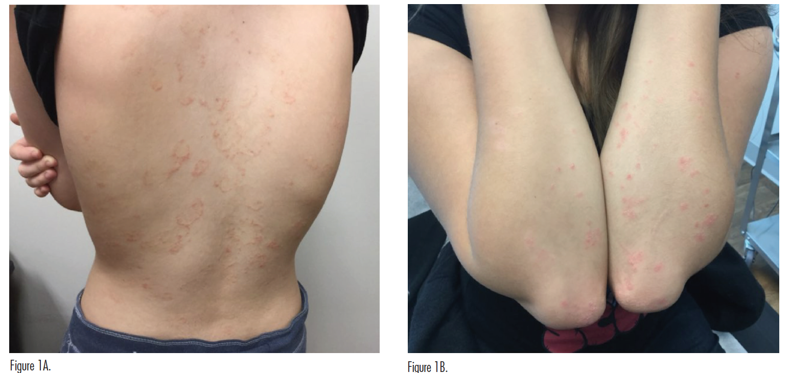 psoriasis case figure 1a and b