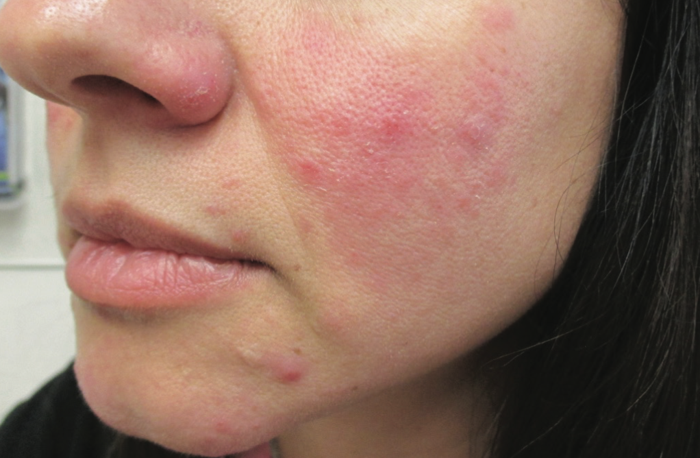 rosacea with papules