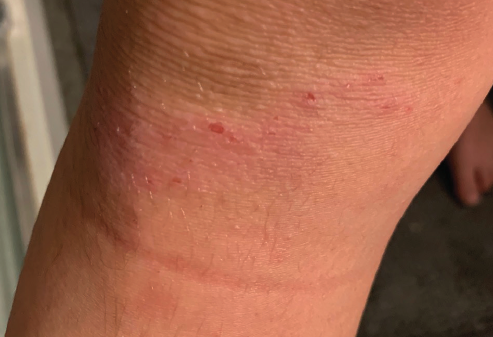 shin guard dermatitis