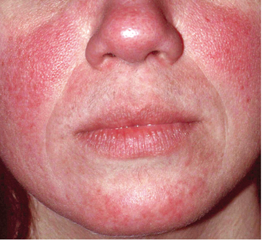 Advances in Managing Rosacea | The Dermatologist