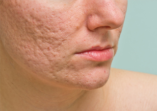 The Psychosocial Impact Of Post Acne Scarring The Dermatologist