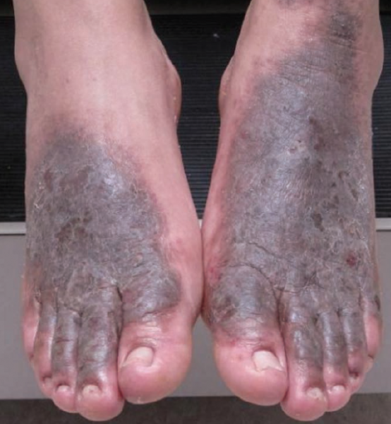 Regional Atlas of Contact Dermatitis: Feet | The Dermatologist