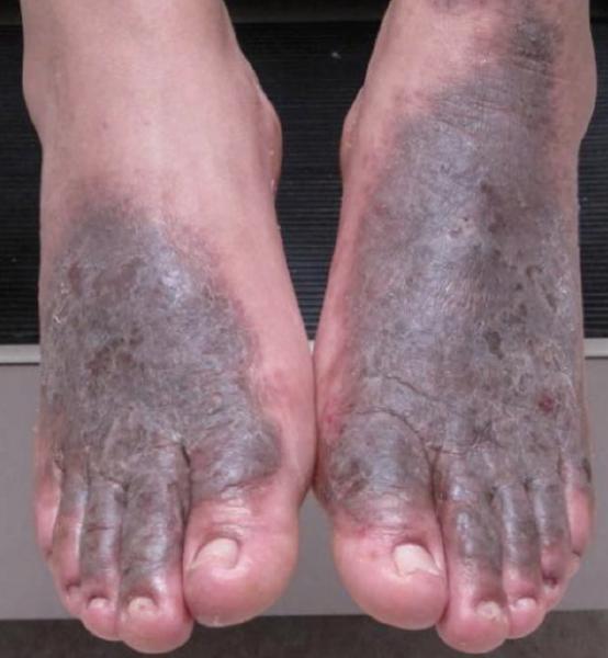 Regional Atlas of Contact Dermatitis: Feet | The Dermatologist