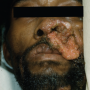 Figure 1. Secondary cutaneous lesion in disseminated coccidioidomycosis presenting as a verrucous plaque on the nasolabial fold. Source: Graham Library of Digital Images, Wake Forest University Department of Dermatology © 2009 Wake Forest University Dermatology