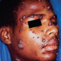 Figure 2. Secondary cutaneous coccidioidomycosis presenting as multiple papules on the face and neck. Source: Graham Library of Digital Images, Wake Forest University Department of Dermatology © 2009 Wake Forest University Dermatology