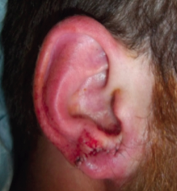 Repair of the Dilated Earlobe After Ear Gauging | The ...