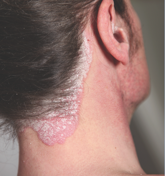 Taclonex ointment is currently FDA approved for use on psoriasis 2