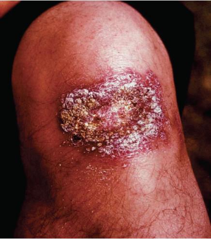Blastomycosis: MedlinePlus Medical Encyclopedia
