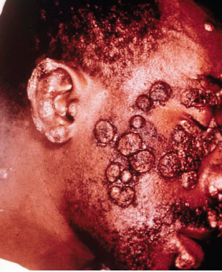 blastomycosis skin lesions #11
