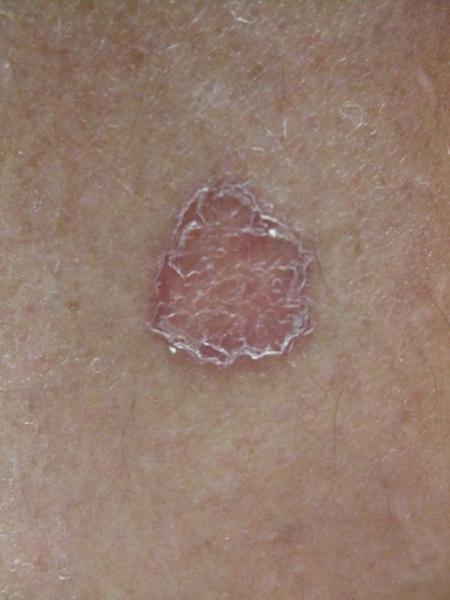 itchy scalp and rash on back of neck - Dermatology - MedHelp