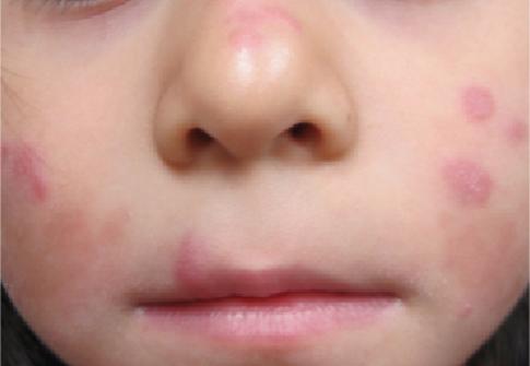 Discoid lupus erythematosus - British Association of ...
