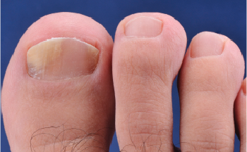 Addressing The Frustrations Of Nail Disorders