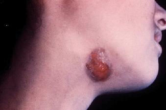 Actinomycosis - Pictures, Symptoms, Diagnosis, Treatment