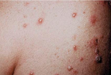 2017 ICD-10-CM Diagnosis Codes L02.* : Cutaneous abscess ...