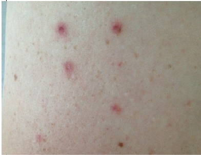 rosacea systemic steroids