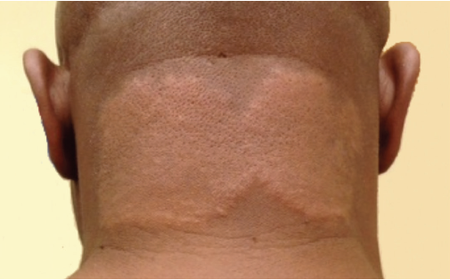 what are these plaques on the nape of the neck? | the dermatologist, Cephalic Vein