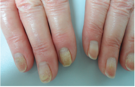 Nail Tips For The Practicing Dermatologist