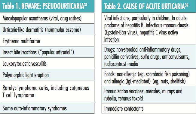 Management of Chronic Urticaria | The Dermatologist