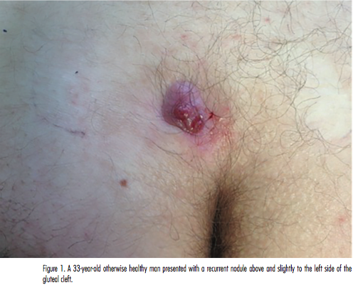 Derm Dx What Is This Supragluteal Cleft Lesion The Dermatologist