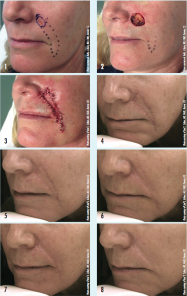 Improvement Of Post Surgical Scars With Laser Devices
