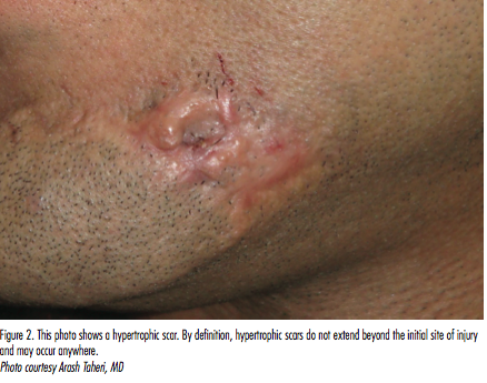 How Can You Prevent Hypertrophic Scars And Keloids The Dermatologist