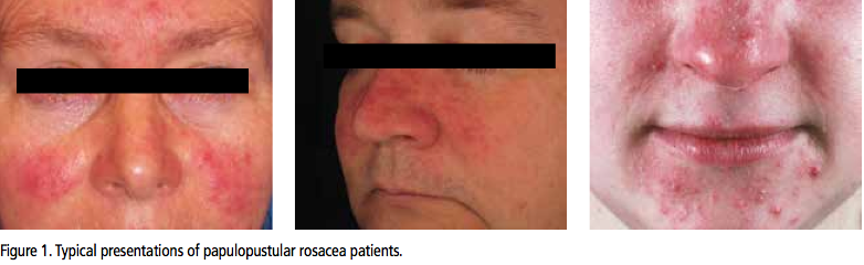 Oracea 40 Mg Capsules For Papulopustular Rosacea The Dermatologist