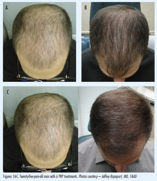 Incorporating PlateletRich Plasma For Hair Restoration Into Your Enchanting Male Or Female Pattern Baldness Treatments
