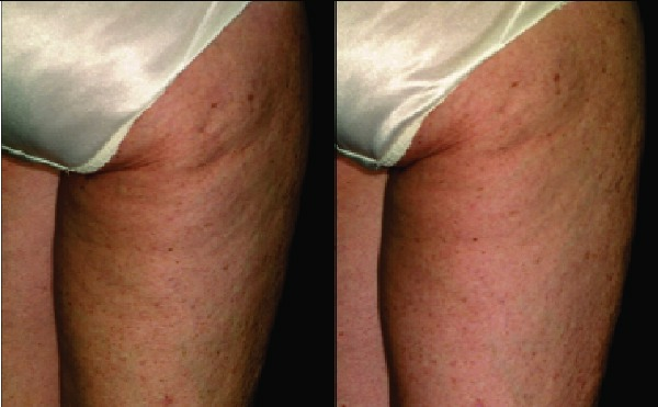 Skin Problems & Treatments: Treatment & Care - WebMD