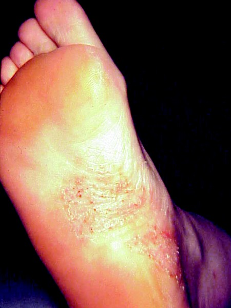 A Guide To Skin Conditions Of The Diabetic Foot Podiatry Today