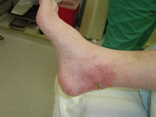 How To Recognize And Treat Community-Acquired MRSA | Podiatry Today
