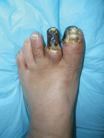 The patient has critical limb ischemia as evidenced by the gangrene of the first and second digits.