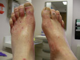 The pallor of the feet upon elevation show significant peripheral arterial disease.