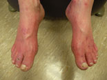 The pallor of the feet upon elevation (see top) and rubor of the feet in dependency (see bottom) show significant peripheral arterial disease.