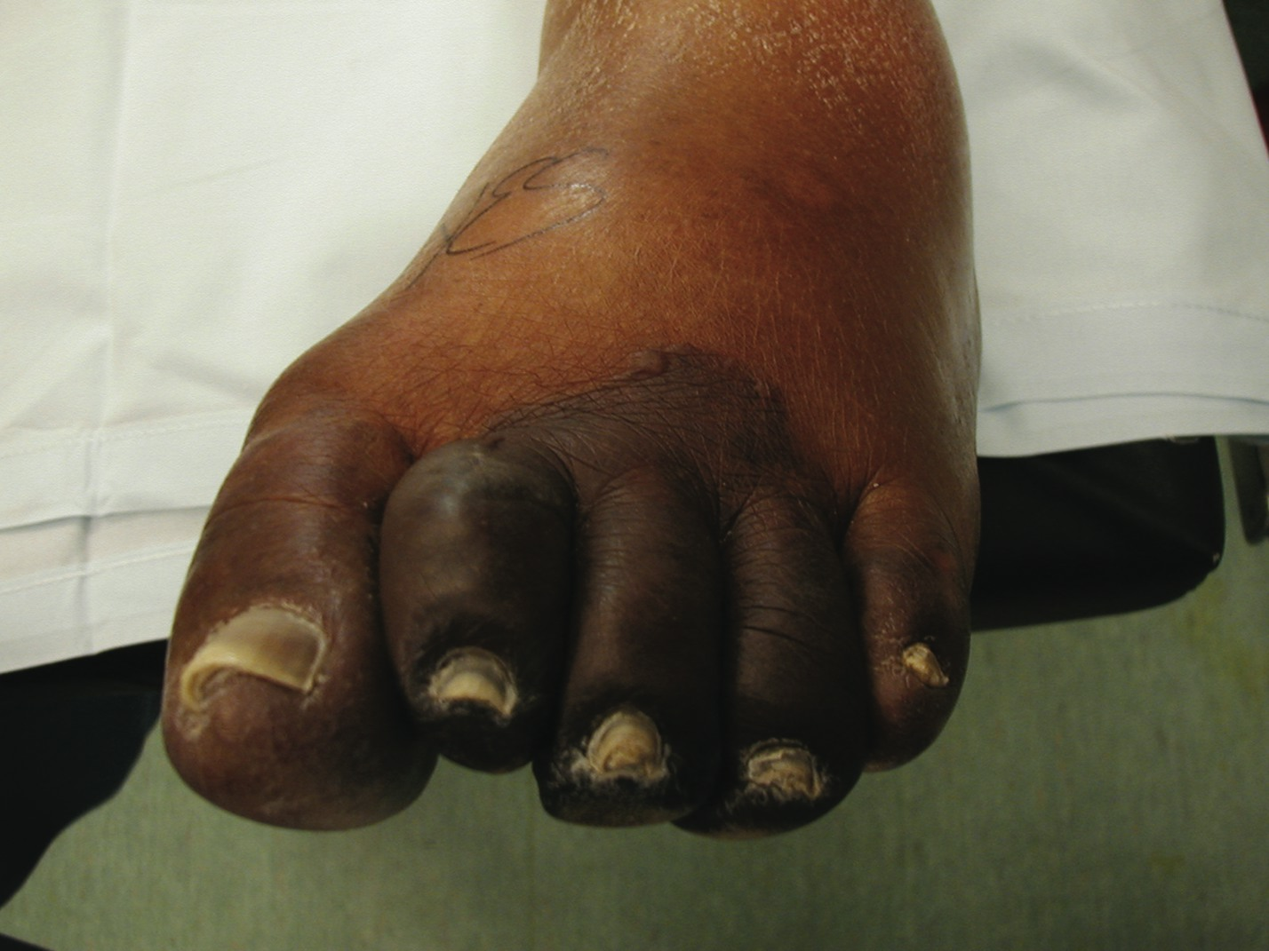 Essential Questions For Surgical Intervention Of Diabetic Foot