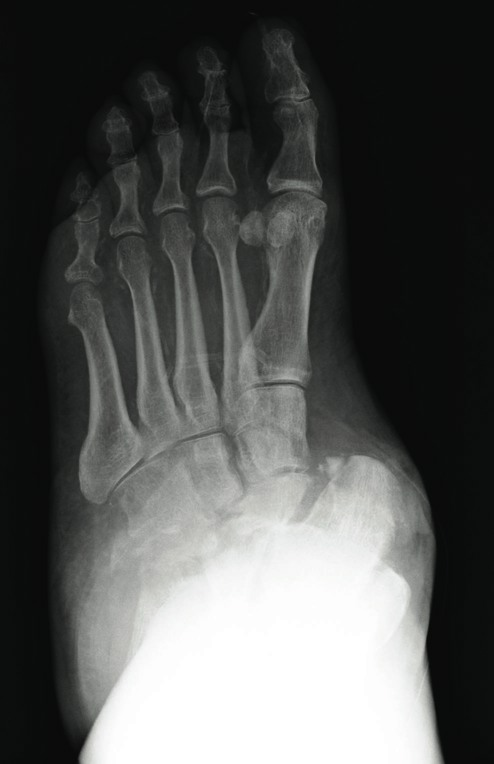 This radiograph demonstrates dislocation of both talonavicular and subtalar joints with periarticular erosions, intraarticular debris and fragmentation.