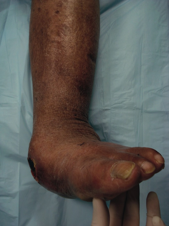 Here one can see a rearfoot Charcot dislocation resulting in an unstable collapsed pes planovalgus deformity. The prominent talar head caused a full thickness ulceration of the medial talonavicular area, exposing bone.