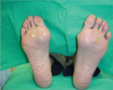 The inability of the distal or lower extremity small nerve fibers to distinguish coarse from smooth, temperature variations and other sensory stimuli aggravates anatomical deterioration. Accordingly, one may see the development of calluses as shown above.