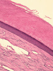 Here one can see the biopsy. The biopsy initially suggested a connective tissue nevus, a localized malformation of dermal collagen. The author had reservations about the diagnosis based on the clinical picture. He stresses the importance of consulting wi